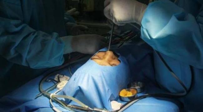 Tek göz çıkarılırsa hayatta kalınıyor! Kara mantar hastalarının yeni fotoğrafları geldi